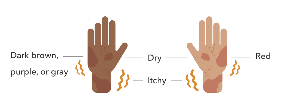"""Two hands with cracks that are labeled """"dry"""" and """"itchy"""". The darker skin hand has dark spots labeled """"brown, purple, or gray"""". The lighter skin hand has red spots labeled """"red""""."""