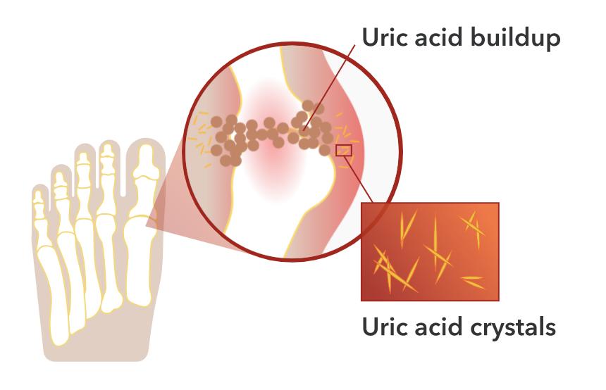 Diagram showing uric acid buildup and uric acid crystals near the big toe.