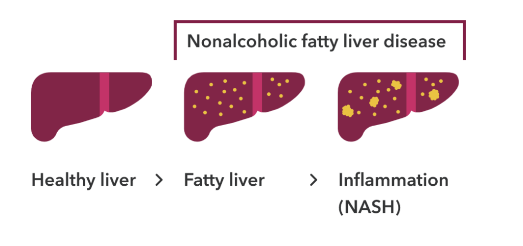A healthy liver compared to nonalcoholic fatty liver disease both in a fatty liver and a liver with inflammation (NASH). There are yellow spots in the fatty liver and larger yellow spots in the liver with inflammation. This is visual evidence of nonalcoholic fatty liver disease.